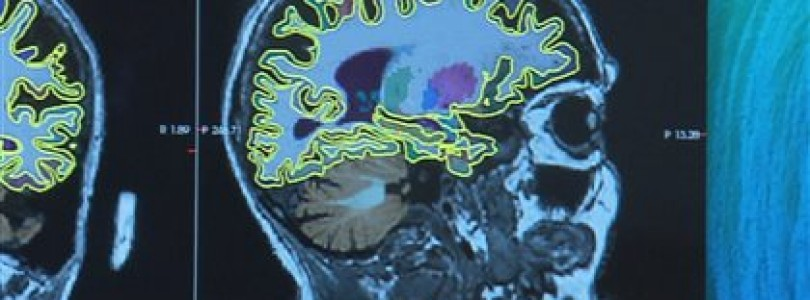Une étude sans précédent pour détecter les premiers signes de l'alzheimer