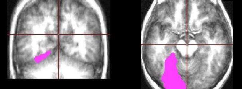 Diagnostiquer l'AVC par l'IRM