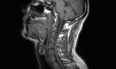 Projet Transparence : Les images d'IRM