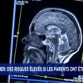 #alzheimer #irm #ImagerieMedicale #recherche